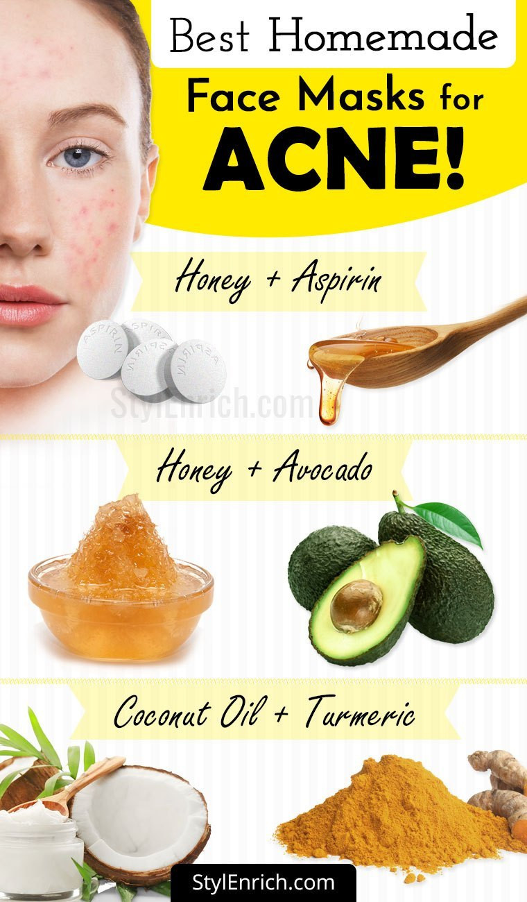 DIY Face Mask For Pimples  Homemade Face Mask For Acne Treatment At Home