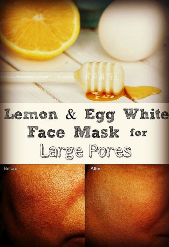 Pore Shrinking Mask DIY  You need an egg white honey and a quarter teaspoon